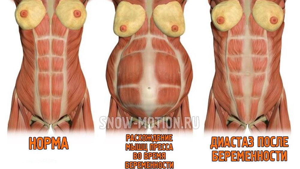 Как убрать диастаз после родов