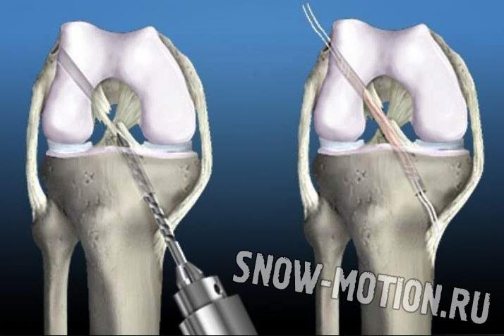 Операция по восстановлению разрыва передней крестообразной связки