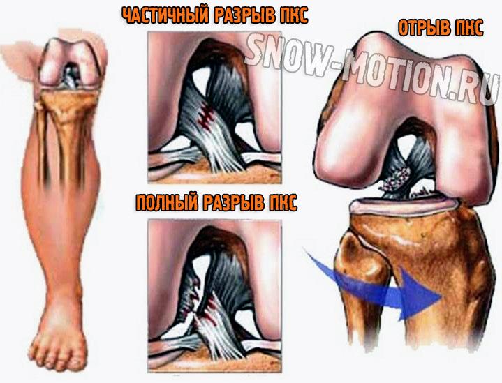 Разрыв передней крестообразной связки: физиология травмы